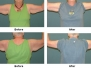 Brachioplasty (Arm Lift) Before and After Pictures