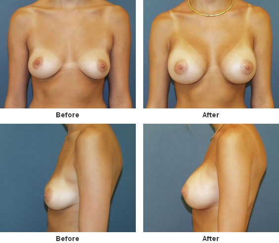 breast augmentation 10 Testimonials About Breast Augmentation