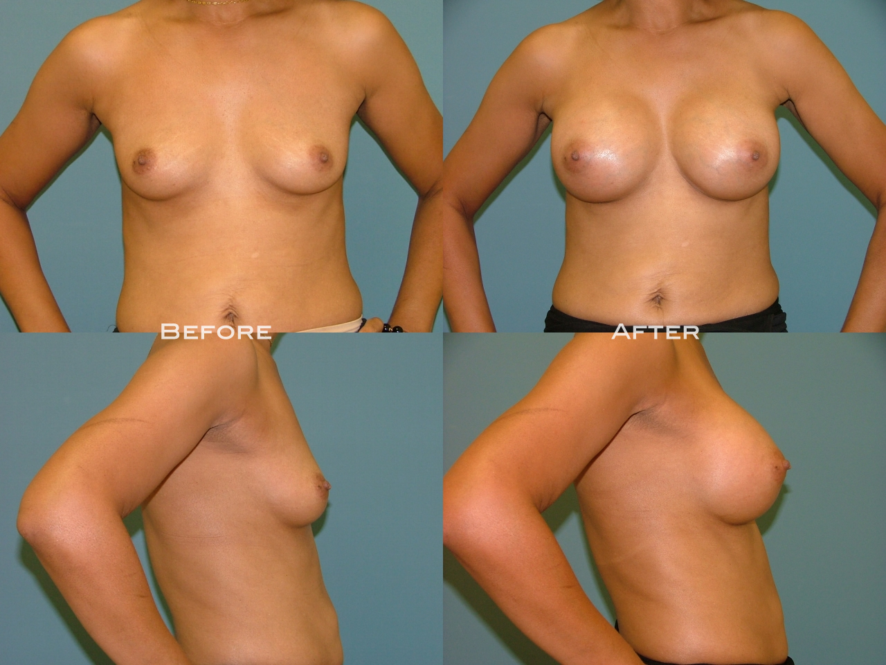 Breast Augmentation Palm Harbor Moraitis Plastic