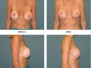 Breast Implant Repair Before and After Pictures