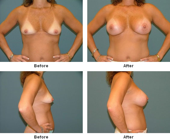 Bad Breast Augmentation? photo Doctor Answers, Tips