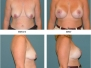 Breast Lift (Mastopexy) with Augmentation Before and After Pictures