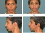 Chin and Cheek Implants Before and After Pictures