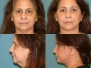 Face Lifts Before and After Pictures