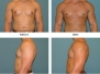 Male Breast Reduction Before and After Pictures