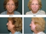 Laser Skin Resurfacing Before and After Pictures