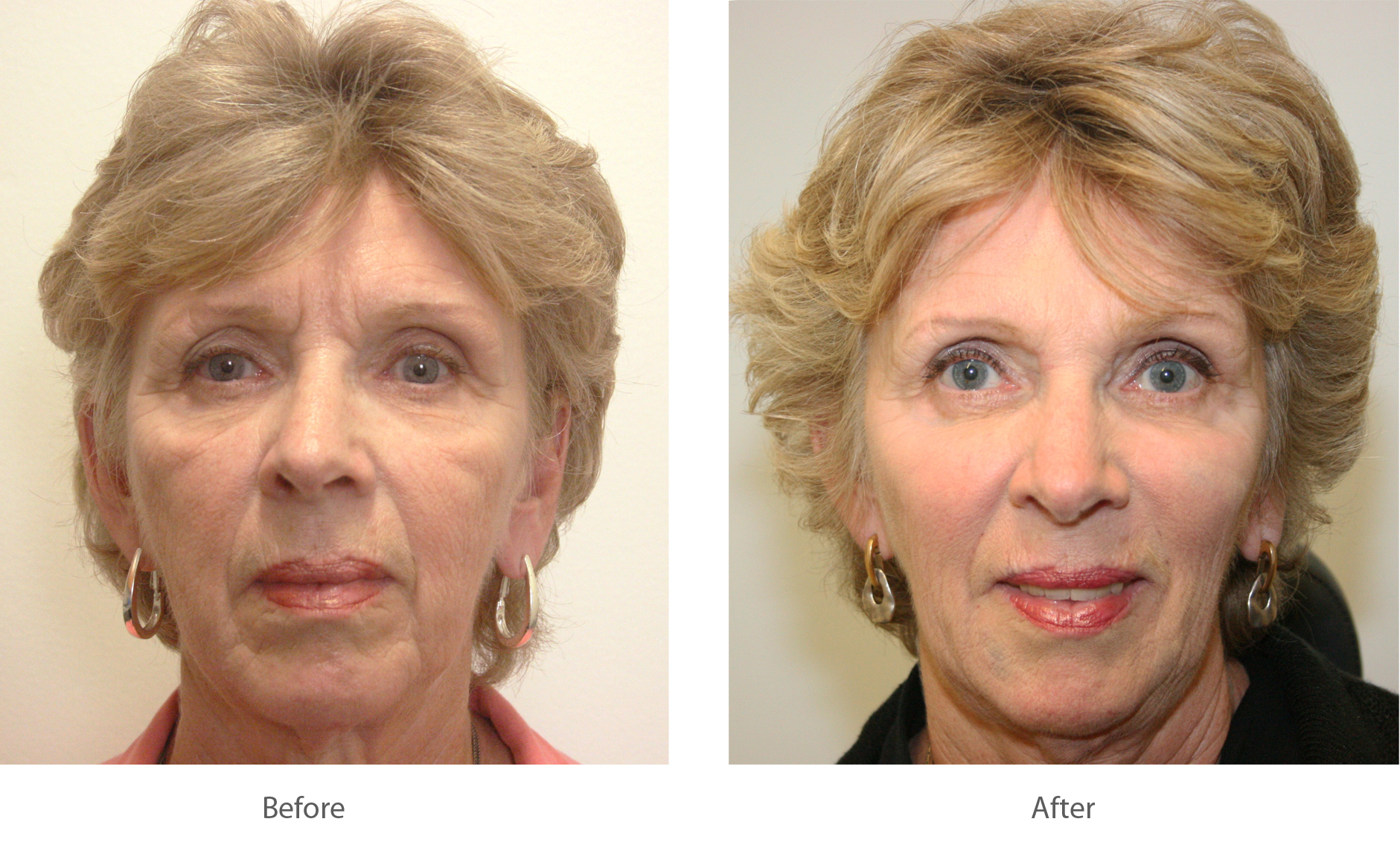 Cosmetic Fillers in Palm Beach