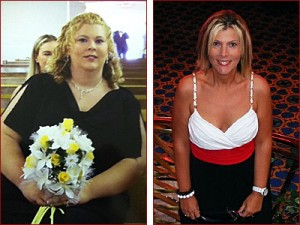 Weight-Loss Surgery