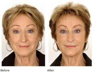 Cosmetic Fillers in the Palm Beaches