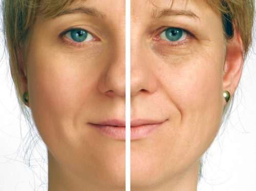 Anti-Aging Procedures in the Palm Beaches