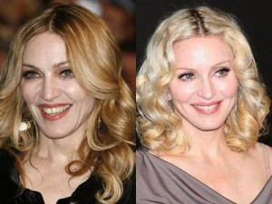 Palm Beach Botox Treatments and Other Anti-Aging Procedures