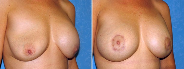 Breast Augmentation Revision and Repair