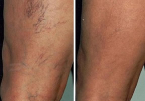 Before and After Leg V Laser Treatment