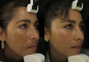 Before and After Facial V Laser Treatment