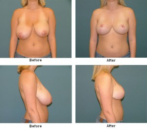Delray Beach Breast Reduction