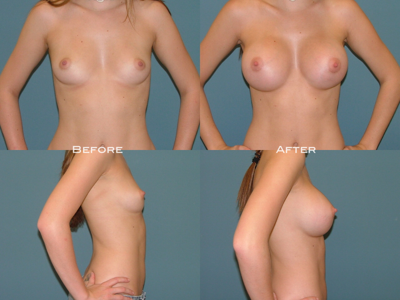 Breast Augmentation FAQ