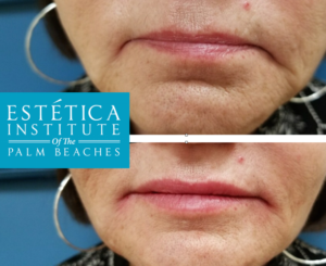 66 year old woman injected with Vollure in lips and Voluma in commisures. Desiree Panganiban at Estetica Institute