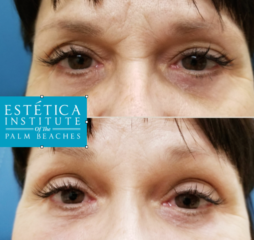 Dermal fillers Desiree Panganiban at Estetica Institute