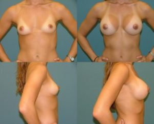 Breast Augmentation Estetica Institute of the Palm Beaches
