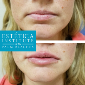 Lip enhancement with Juvederm Ultra. Desiree Panganiban at Estetica Institute