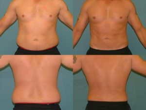 Fat Reduction For Men - Liposuction at Estetica Institute of the Palm Beaches