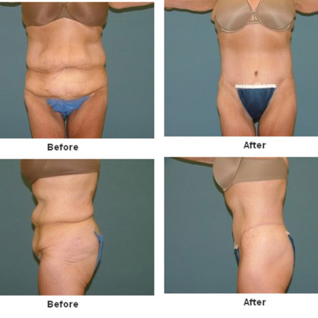 Body Lift at Estetica Institute of the Palm Beaches