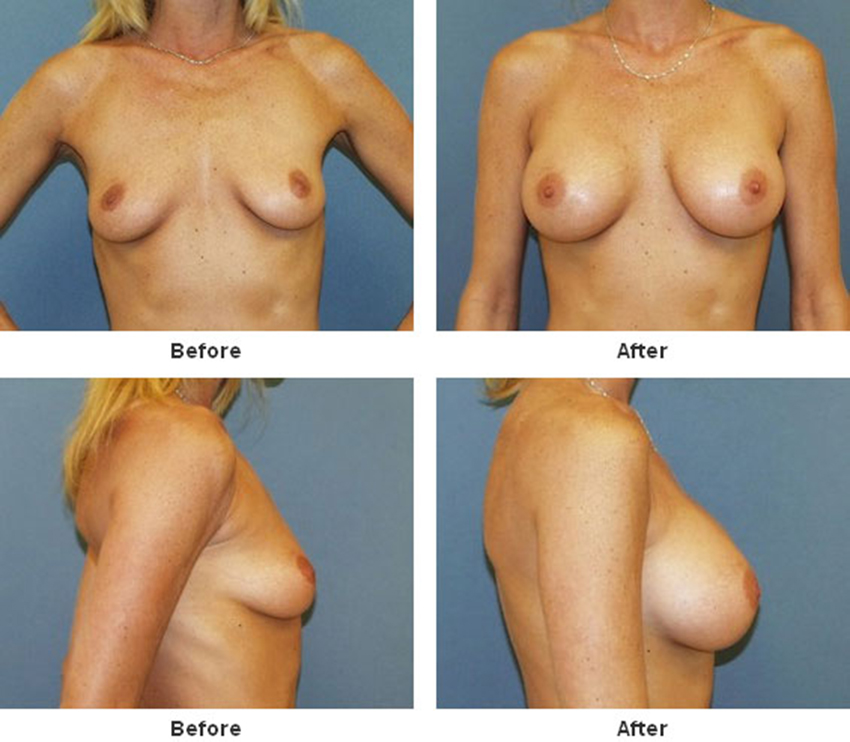Silicone breast implant injury lawsuits add up