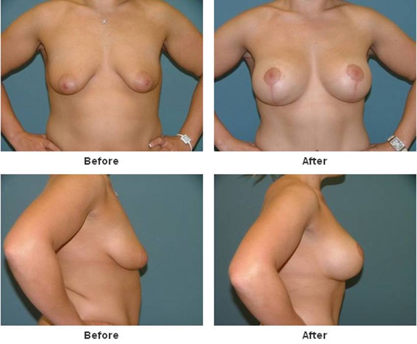 breast agumentation and
