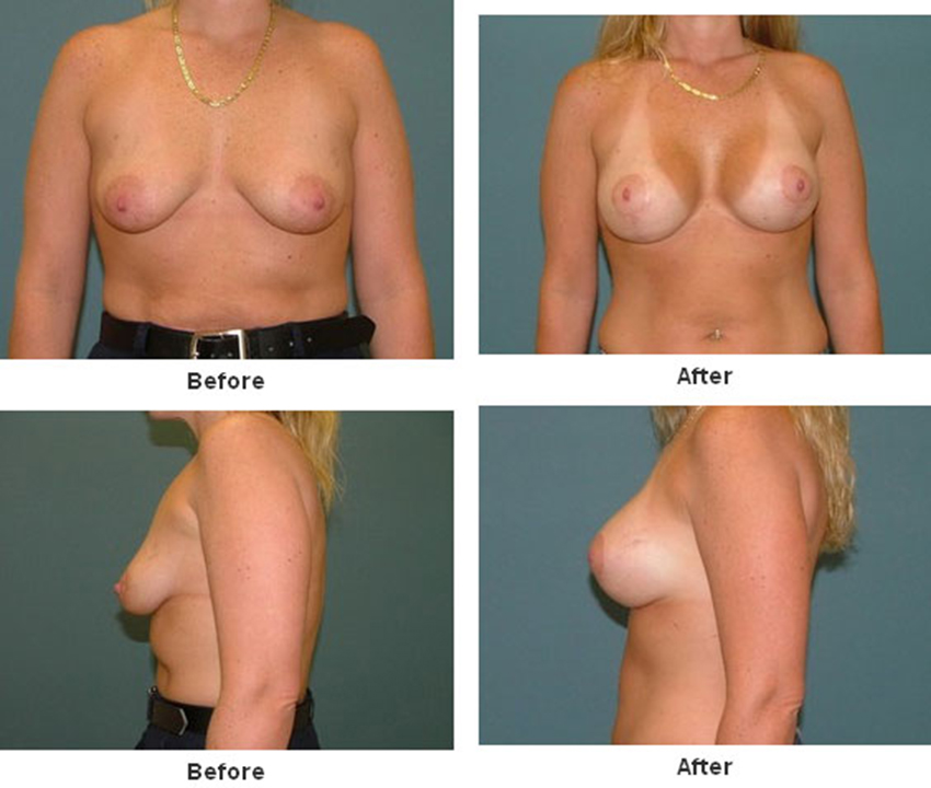 Breast lift mastopexy before after pictures