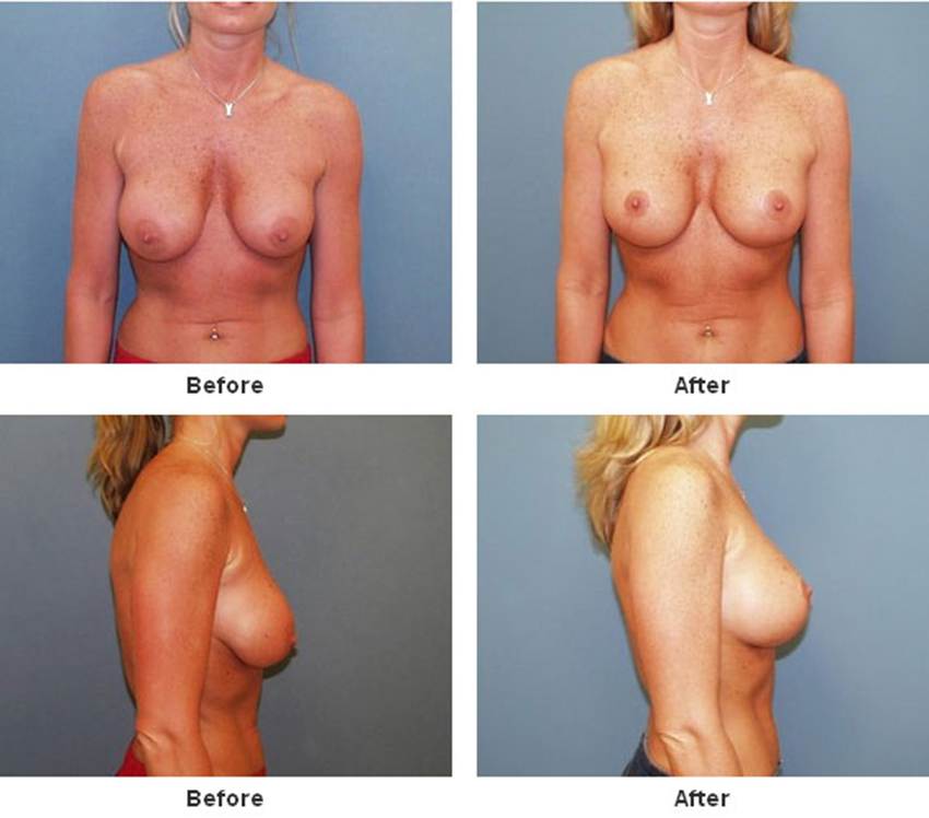 Before and after bad breast agumentation