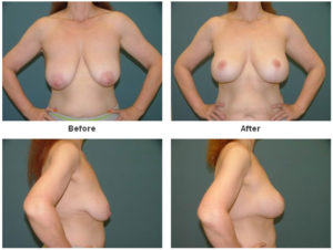 Breast Lift at Estetica Institute of the Palm Beaches