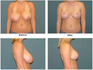 Breast Reduction at Estetica Institute of the Palm Beaches