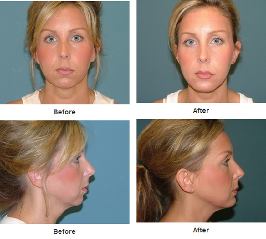 Chin And Cheek Before Amp After Estetica Institute