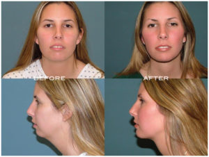 Chin and Cheek Implants at Estetica Institute in Palm Beach Gardens