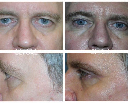 Eyelid Surgery at Estetica Institute of the Palm Beaches