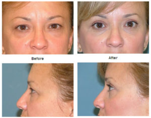 Eye Lift at Estetica Institute of the Palm Beaches