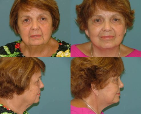 Facelift at Estetica Institute of the Palm Beaches