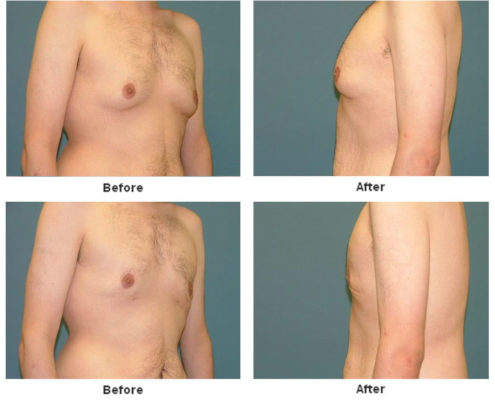 Gynecomastia Estetica Institute of the Palm Beaches