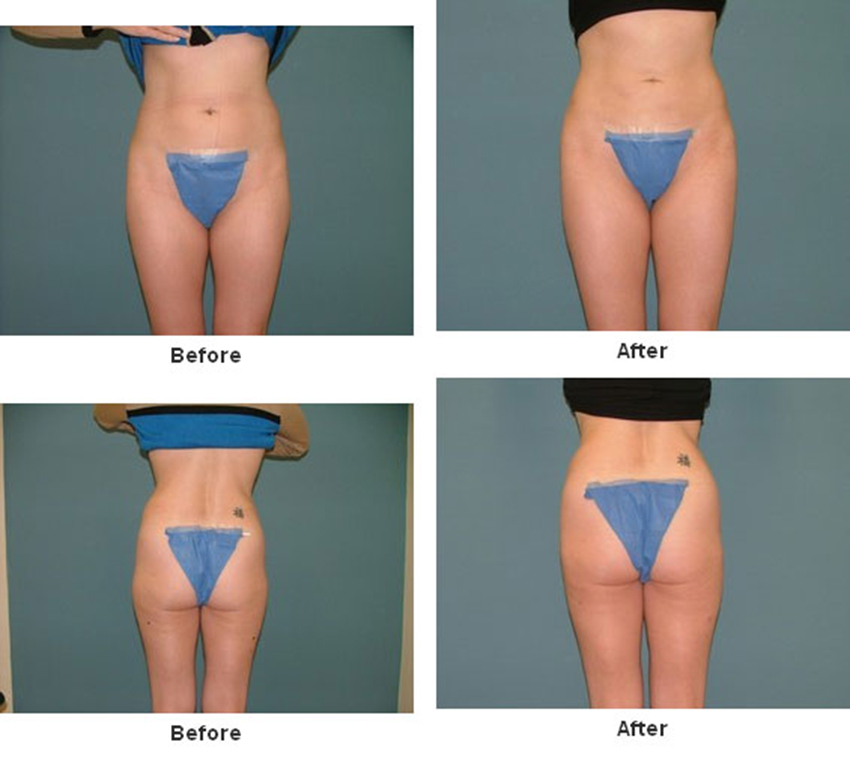 Liposuction Before After Lipoplasty Is A Procedure That Reshapes The Body
