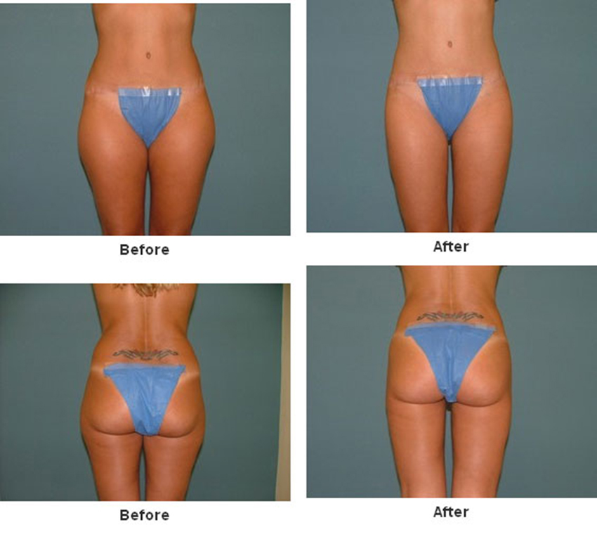 Liposuction before after - Lipoplasty is a procedure that