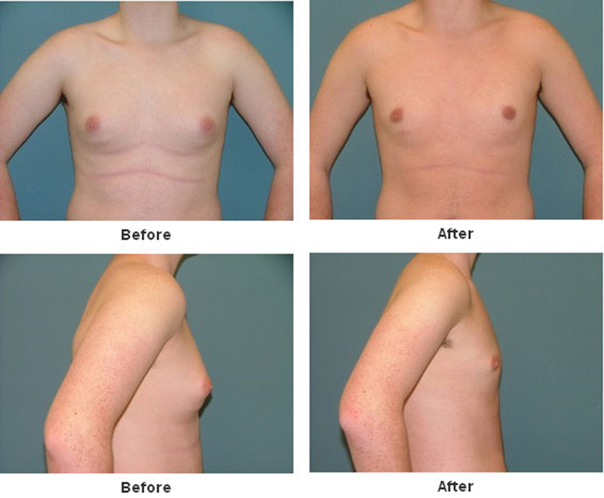 Male Breast Reduction Photo Gallery