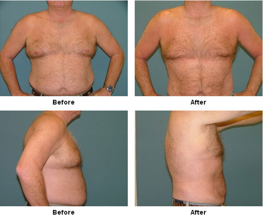 breast reduction before and after pictures  613214