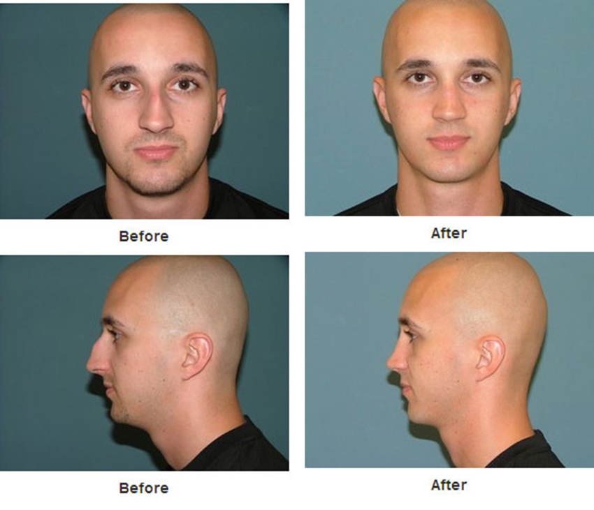 Rhinoplasty Or Nose Surgery Is A Procedure That Starts