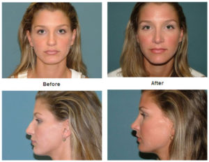 Nose Surgery at Estetica Institute in Palm Beach Gardens