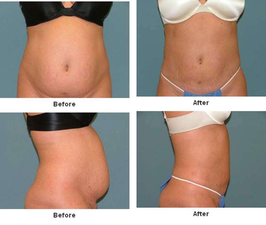 Tummy Tuck Before And After Estetica Institute