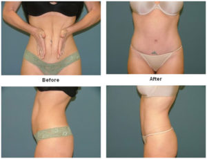 Tummy Tuck at Estetica Institute in Palm Beach Gardens