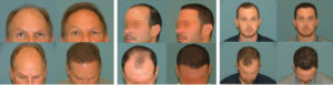 Neograft Hair Transplant at Estetica Institute
