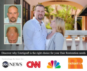 Discover why Estetigraft is the right choice for your Hair Restoration needs