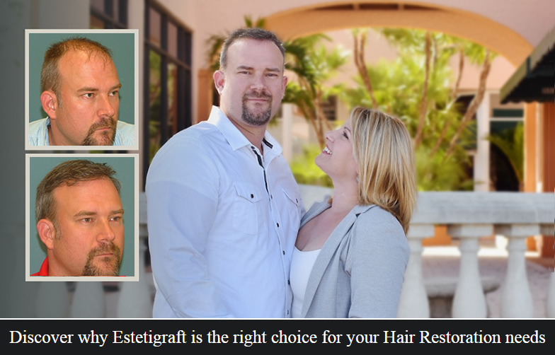 Neograft Hair Transplant at Estetica Institute of the Palm Beaches