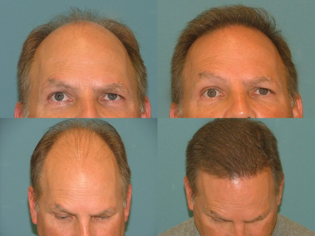 Hair Restoration at Estetica Institute of the Palm Beaches